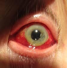 pilonidal cyst teeth strange diseases in humans odditiesbizarre com