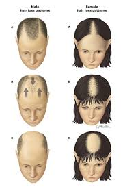 thinning hair in women on top of head hair loss family care clinic