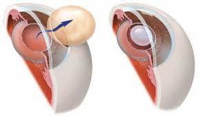 light streaks after cataract surgery cataract surgery complications late complications that you should