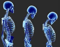 muskelschwäche rundrücken kyphosierung durch muskelschwäche