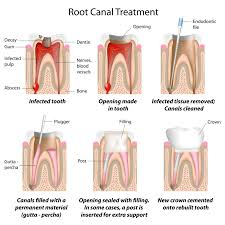 youtube video of root canal procedure root canal treatment