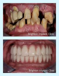 Bridge Dental Cost Estimate by Best 25 Dental Implant Cost Ideas On Dental Costs