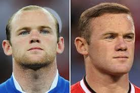 hair plugs for men rooney inspires have hair transplant boom his hair clinic