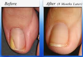 toenail fungus home remedies for better looking nails yellow toenails does toenail fungus always cause it sterishoe