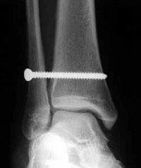 High Ankle Sprain Anatomy High Ankle Sprains Mike Reinold
