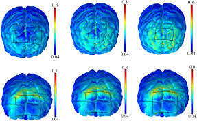 modelling of the electric field distribution in the brain during