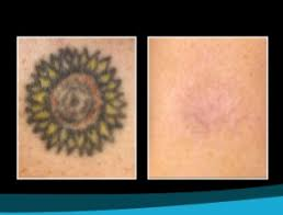 picosure tattoo removal in beverly hills