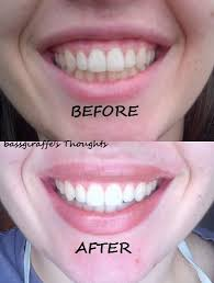 led light for teeth the led teeth whitening system by smile brilliant review