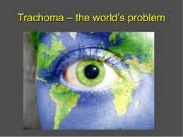 Blindness In The World Dr A R Rajalakshmi 8 2 17 Chronic Conjunctivitis Ii