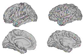 Brain Mapping Episurg Licensed For Non Commercial Use Only Mapping Electrode