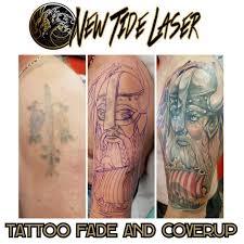 tattoo artists u2014 new tide laser tattoo removal