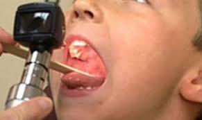 Ibu Menyusui Radang Tenggorokan Radang Tenggorokan Lebih Rentan Menular Pada Anak
