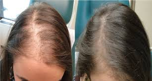 Stem Cells Hair Loss Prp For Hair Loss Hair Growth Injection In Toronto Spamedica