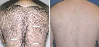 tattoo removal on african american skin 1000 geometric tattoos