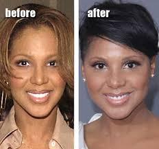 tamar braxton nose job before after toni braxton plastic surgery before and after nose job and breast