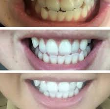 guaranteed result teeth whitening 20 end 1 14 2018 5 15 pm