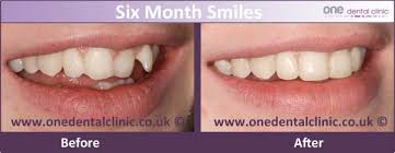 what is the average price for a one bedroom apartment what is the average cost of a 6 month smile treatment one