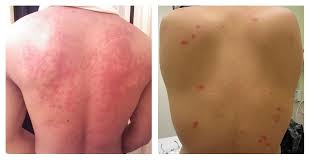 When Do Bed Bugs Bite Bed Bugs Vs Hives How To Tell If It U0027s Just A Bite Or An Allergic