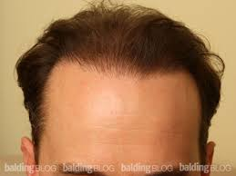 pics of scalp micropigmentation on people with long hair hair transplants with scalp micro pigmentation with photos