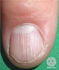 localisation fingernail diagnosis lichen planus nail disorders