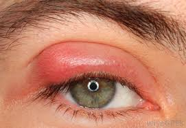 Blindness After Cataract Surgery What Are The Most Common Cataract Surgery Complications