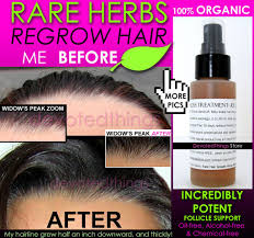 organic hair growth treatment herbal hair care product