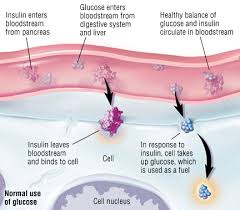 How Does Diabetes Cause Blindness Type 1 Diabetes Mellitus Guide Causes Symptoms And Treatment Options