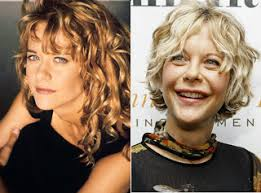 meg ryan city of angels hair meg ryan plastic surgery before and after facelift and botox