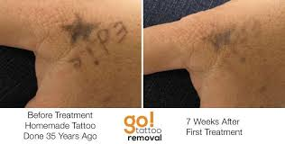 100 first tattoo removal session reset tattoo removal 98