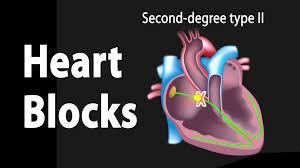 heart blocks anatomy and ecg reading animation youtube