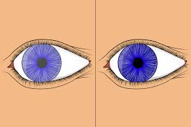 Can Cataracts Cause Blindness Cataract Surgery Guide Pros Cons Side Effects Scars And After Care