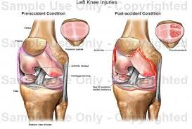 Anatomy Of Knee Injuries Left Knee Injuries Medical Illustration Human Anatomy Drawing