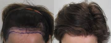 how to use jamaican black castor oil for hair loss more