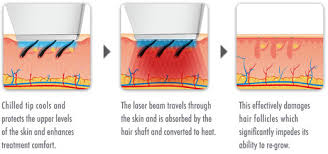 how much does laser hair removal cost on back how much does laser hair removal cost