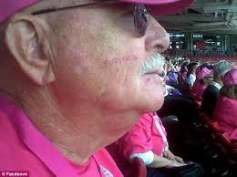 male breast cancer survivor u0027s frustration with pink themed
