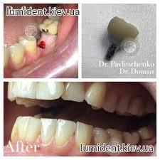 Does Laser Teeth Whitening Work Dental Clinic In Kiev English Speaking Dentist Best Price