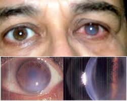 Symtoms Of Blindness Pellucid Marginal Degeneration Wikipedia