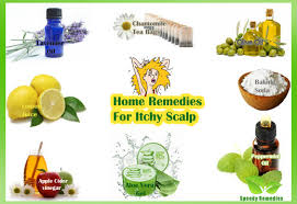 Home Remedies For Small Burns - home remedies for itchy scalp home remedies by speedyremedies