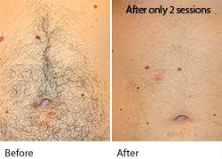 pain free hair free painless laser hair removal leeds west