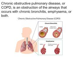 Anatomy And Physiology Of Copd Respiratory System Chapter Ppt Download
