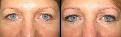 eyeliner tattoo five dock and eyebrow feathering tattoo in sydney