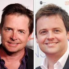 declan donnelly hair transplant index of wp content uploads 2016 11