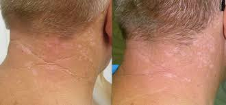 fractional laser treatments cosmedical skin solutions perth