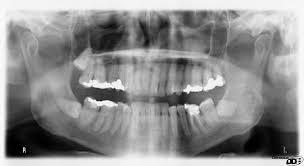 Wheeler S Dental Anatomy Physiology And Occlusion Dental Anatomy Wikipedia