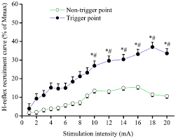 What Is 138 311 As A Percent Increased H Reflex Response Induced By Intramuscular Electrical
