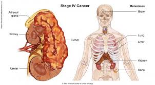 Human Anatomy Liver And Kidneys Kidney Cancer Stages Cancer Net