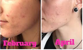 at home light therapy for acne how to get rid of acne with light therapy r beauty ariana