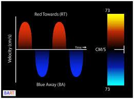 colour color virtual tee colour color doppler standard views cardiac