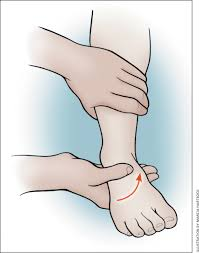Tibiofibular Ligament Injury Update On Acute Ankle Sprains American Family Physician