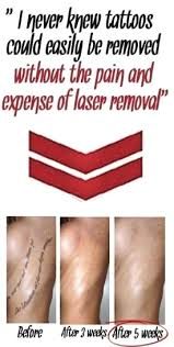 self tattoo removal how to remove a tattoo at home
